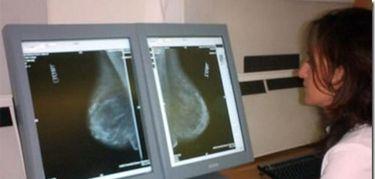 Más de 7.500 extremeñas se someterán a mamografías en abril