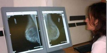 Ms de 6500 extremeas se han sometido  a mamografas este mes