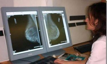 Cerca de 8.000 extremeñas se someterán a mamografías en septiembre