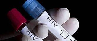 2 de 525 pruebas rpida VIH hechas en 2019 por Comit Antisida Extremadura dieron positivo