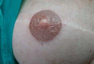 El Hospital Universitario de Badajoz ofrece el servicio de micropigmentación mamaria